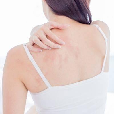 Webinar: Atopični dermatitis in nega atopične kože