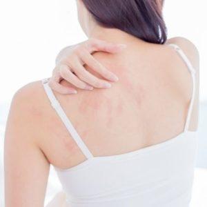 atopični dermatitis in nega atopične kože